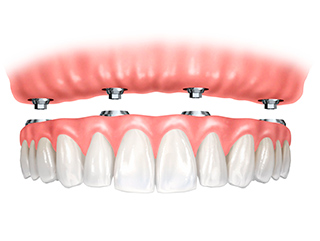 Implant-retained-denture-dentist-cambwell