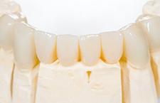 dental crowns bridges and veneers