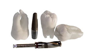 dental-implants-dentist-camberwell