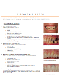 dentist-camberwell-info-Discoloured Tooth