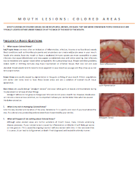dentist-camberwell-info-Mouth coloured lesion