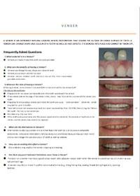 dentist-camberwell-info-Veneer