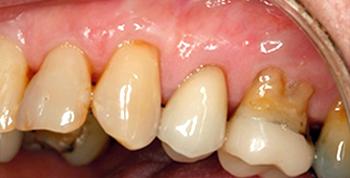 gum after treatment