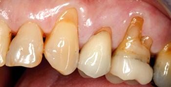 gum before treatment