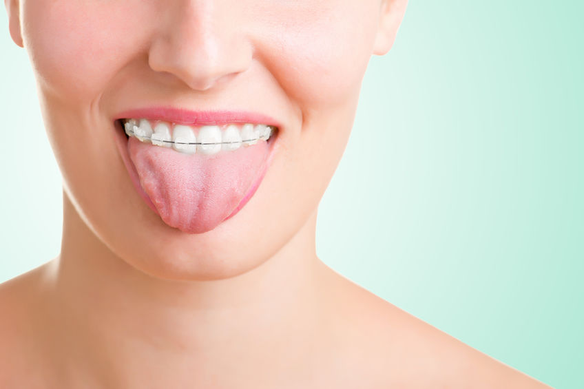 How can I straighten my teeth?